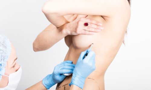 Female doctor makes dotted line on female body for cellulite correction. cosmetic surgery. lifting and breast augmentation