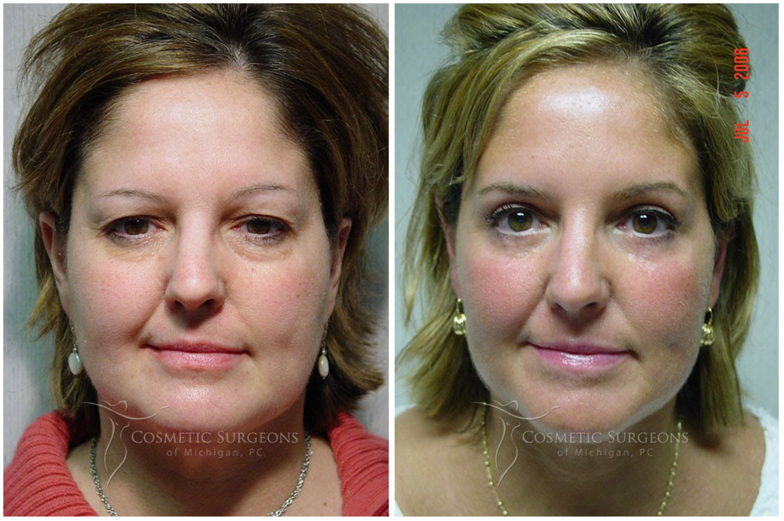 Actual patient of Dr. Goffas before and after eyelid lift surgery