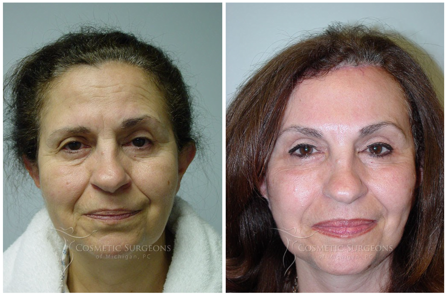 Actual patient of Dr. Goffas before and after forehead lift surgery.