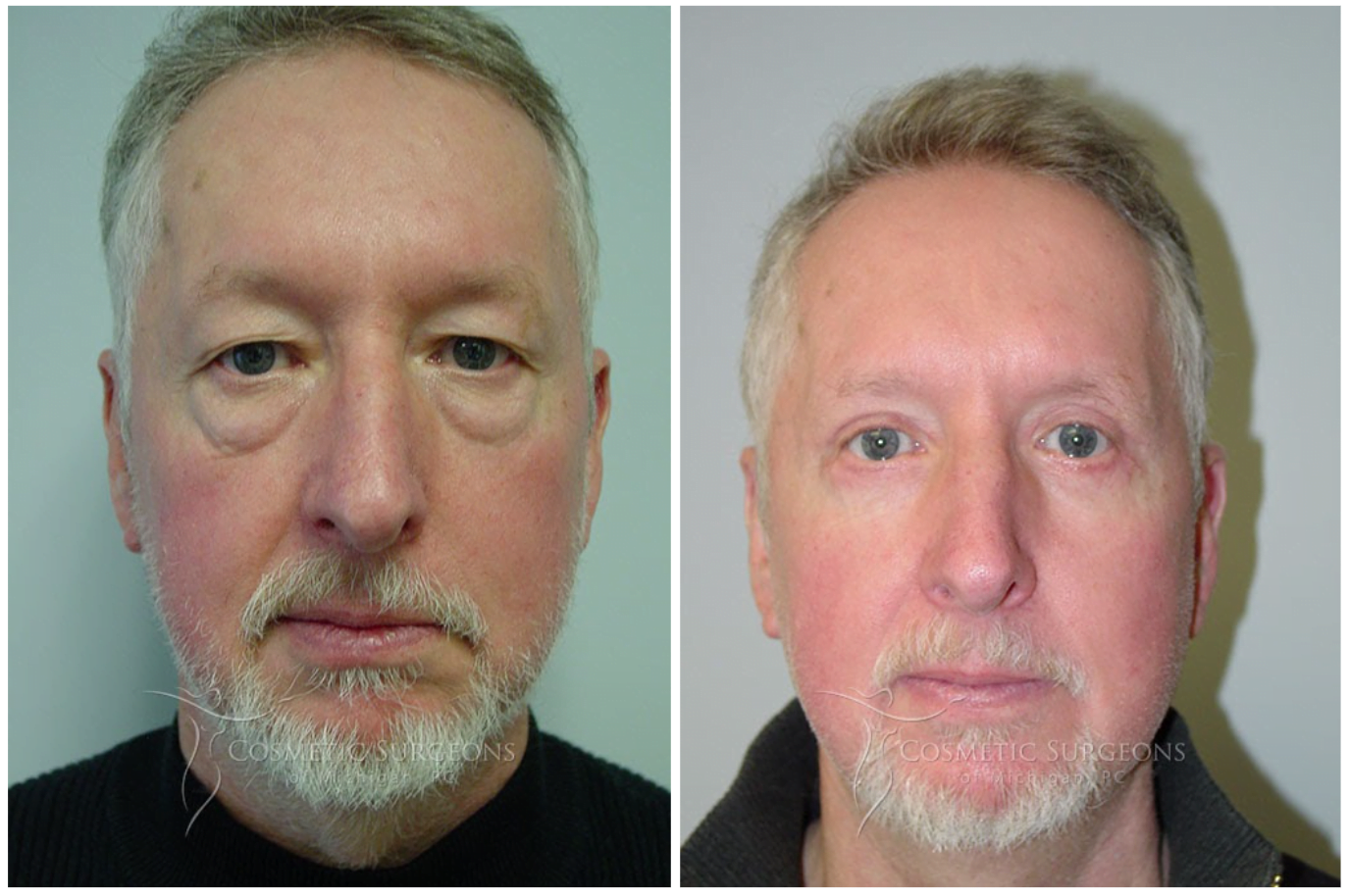 Actual male patient of Dr. Goffas Before and After Eyelid Lift Surgery