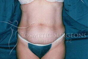 Abdominoplasty patient 2356