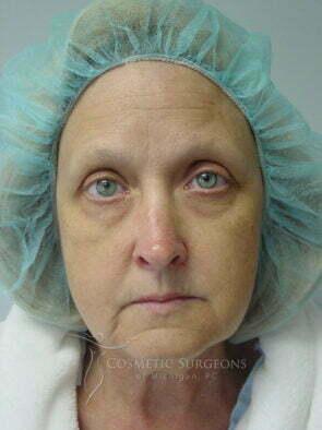 Facelift patient 3134