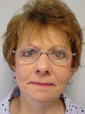 Facelift patient 3098