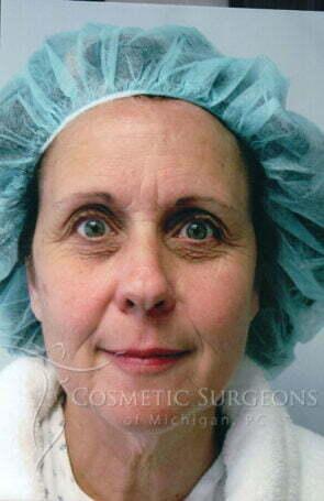 Facelift patient 3116