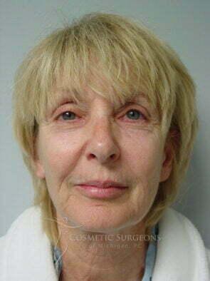 Facelift patient 3156