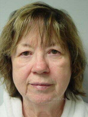 Facelift patient 3178