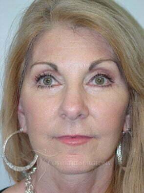 Facelift patient 3189