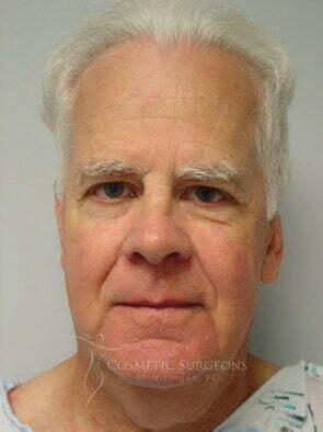 Facelift patient 3211